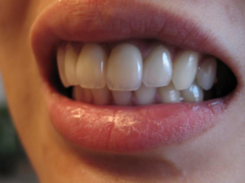 前歯 差し歯 できない 前歯の差し歯について 心や体の悩み 発言小町