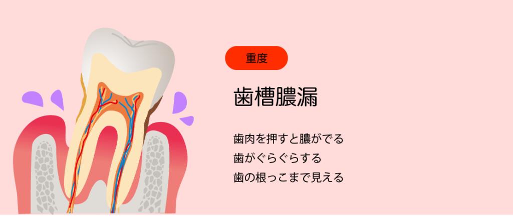 歯周ポケット重度
