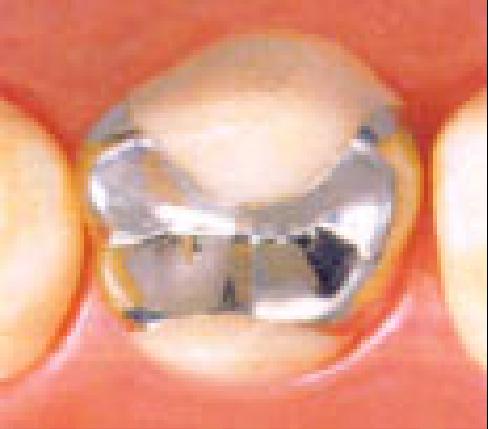 銀歯(合金)インレー