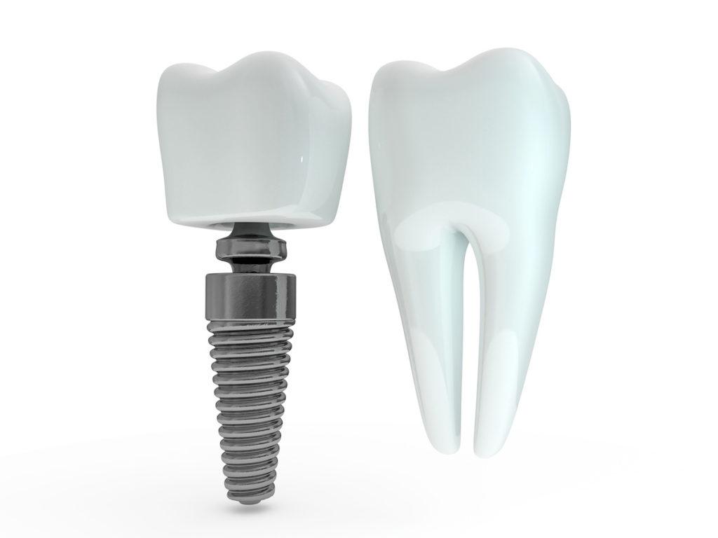天然歯とインプラント